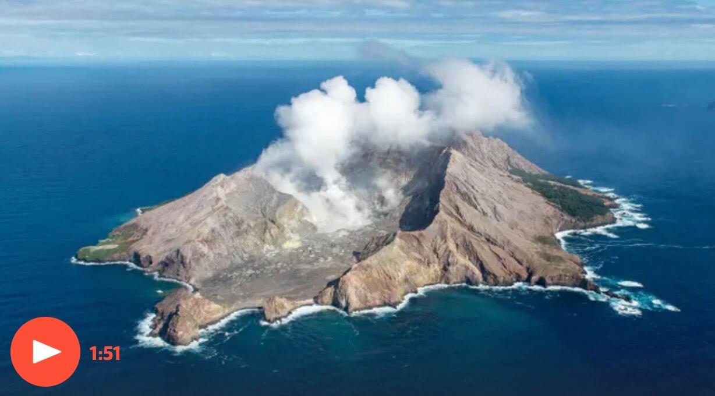 Jeremy Rawlins - Burns Reconstruction Specialist - White island volcano eruption
